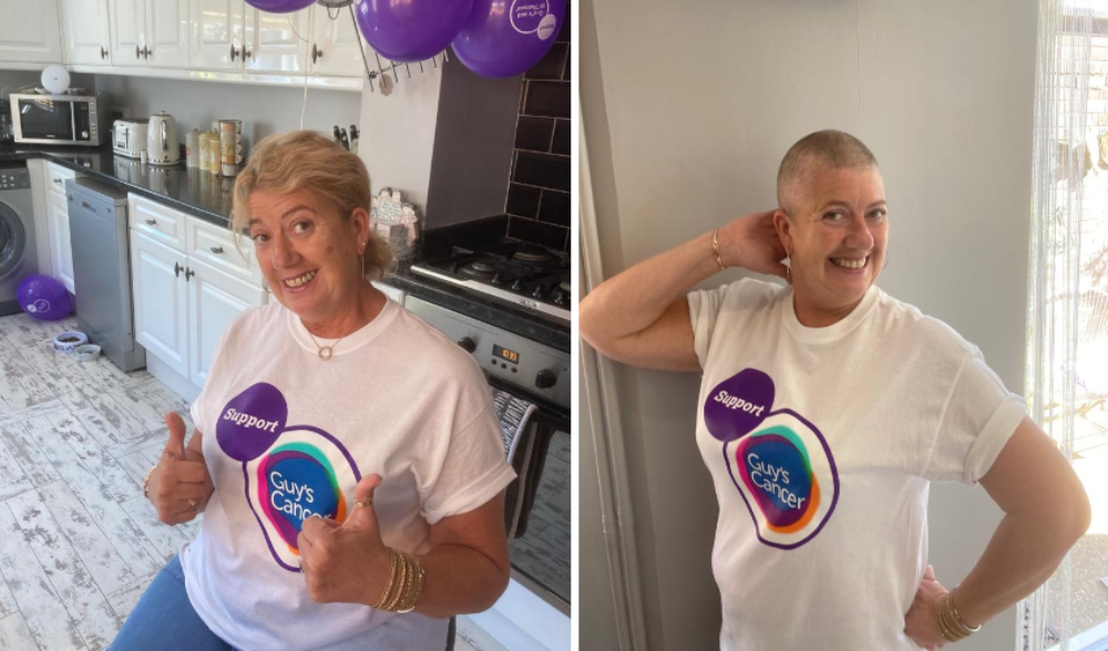 Sharon, before and after her head shave